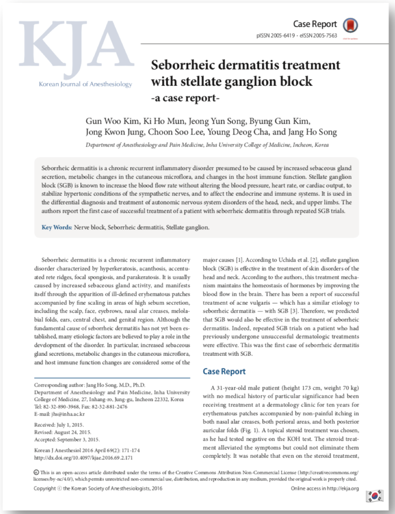 Seborrheic dermatitis treatment with stellate ganglion block