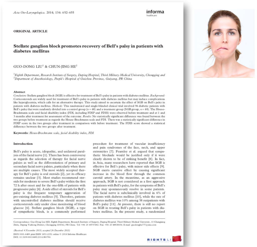 Stellate ganglion block promotes recovery of Bell's palsy in patients with diabetes mellitus