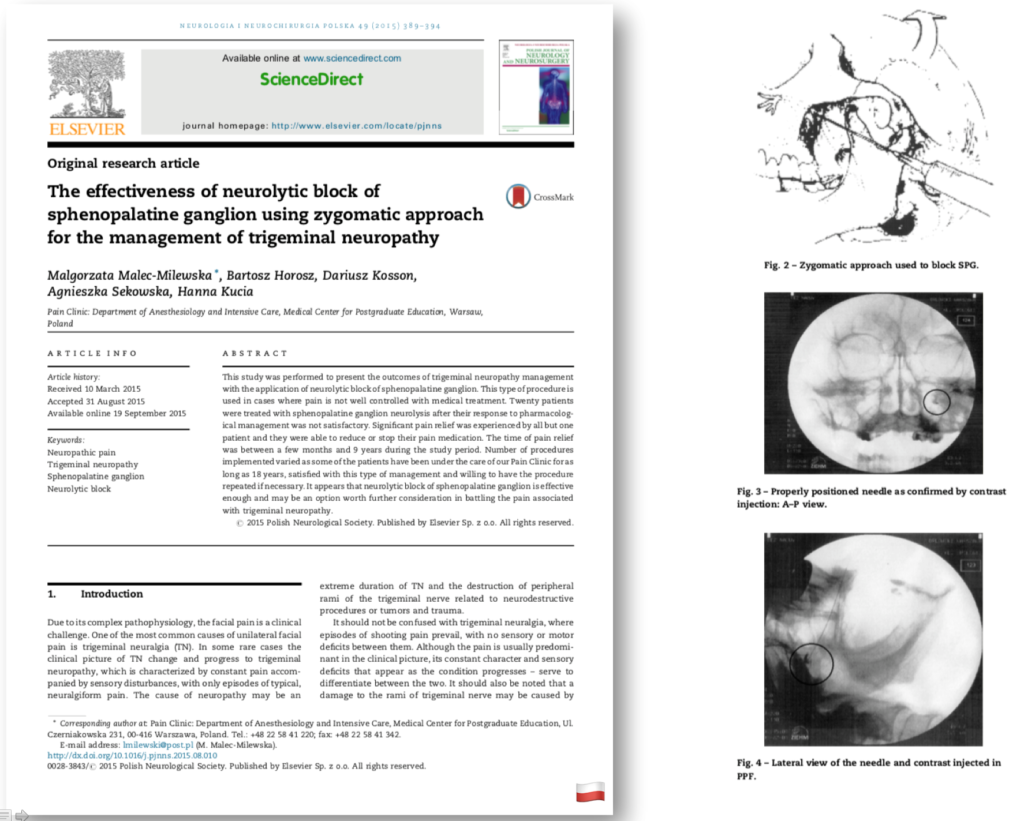 The effectiveness of neurolytic block of sphenopalatine ganglion using zygomatic approach for the management of trigeminal neuropathy
